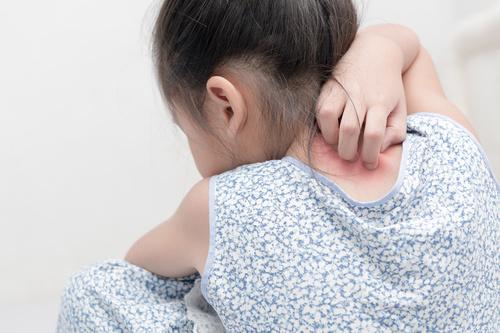 psoriasis-enfant-fille