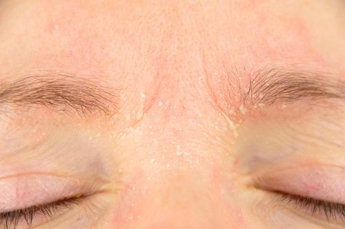 psoriasis-visage