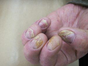 psoriasis-ongle-2