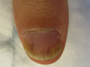 psoriasis-ongle-3