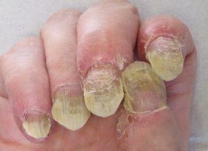psoriasis-ongle