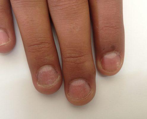 psoriasis-ongle-7