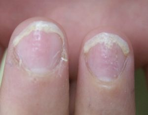 psoriasis-ongle-8