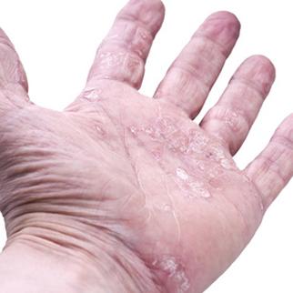 psoriasis main