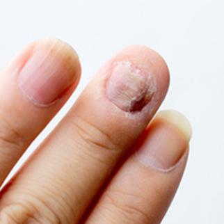 psoriasis ongle