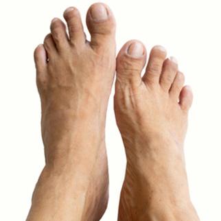 psoriasis pied